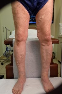front of legs before varicose vein treatment
