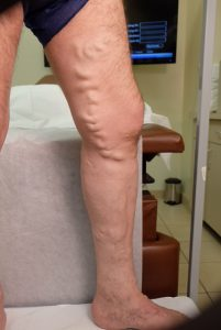 right side leg before Conservative Treatment Chicago