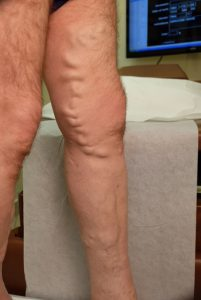 side close up leg before endovenous laser therapy
