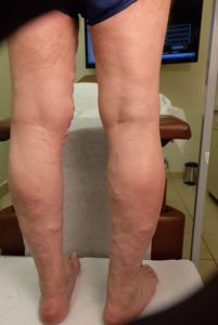 back of legs before vein treatment