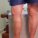 side view leg before varicose vein treatment
