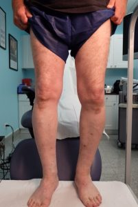 After (Front of Legs)