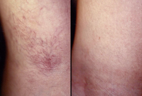 mh_rm_photo_of_before_and_after_sclerotherapy_for_spider_veins.j