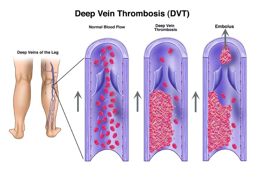 why are arteries deeper than veins in the body The walls of veins in the lower parts of the body are typically thicker than those of the upper parts of the body, and the walls of veins which are embedded in tissues that may provide some structural support are thinner than the walls of unsupported veins.