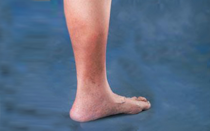 The Causes of Skin Discoloration On Ankles (Brown Skin)
