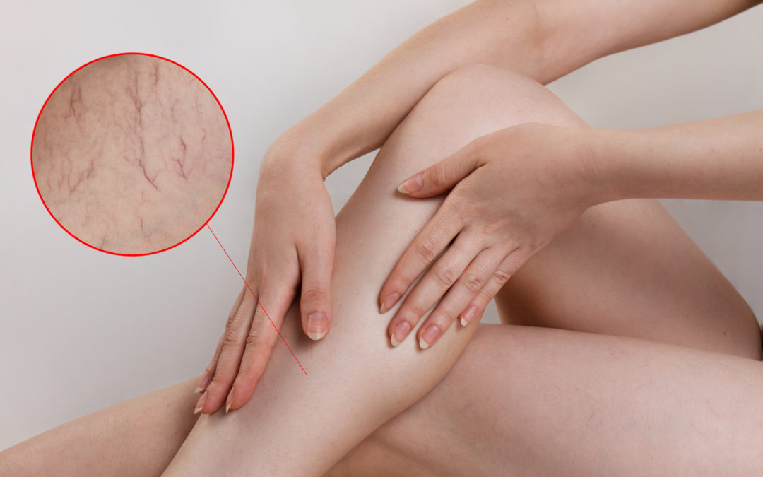 Does Massaging Varicose Veins Help?